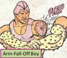 ArmFallOffBoy01